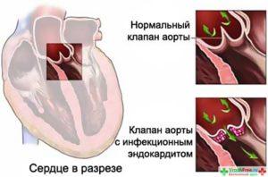 infekzionniy_endokardit