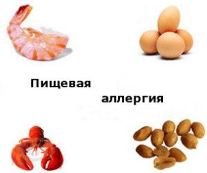 lecheniye_pishevoy_allergii